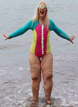فتاة تندم بعد خسارة وزنها بسبب خطأ فادح في الريجيم